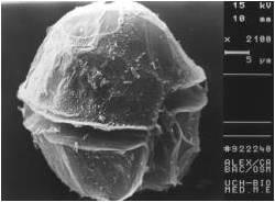 Alexandrium catenella. Fotografía por microscopía electrónica. A.M. Amaro. Laboratorio de Toxinas Marinas. U de Chile.